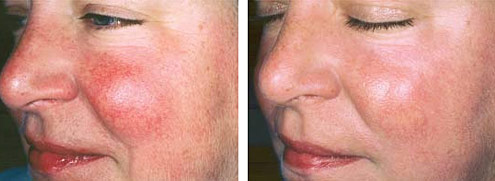 Vascular Facial Treatments Broken Capillaries Diderma